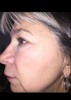 Laser Wrinkle Reduction Patient 2