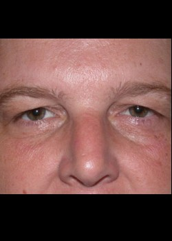 Brow Lift Patient 3